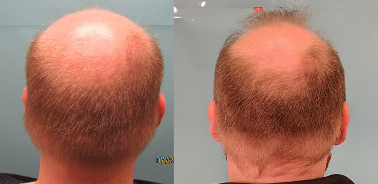 Exosomes Hair Loss Treatment